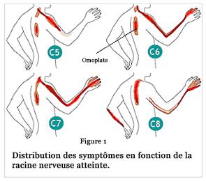 Que faire si fait mal le dessous droit du dos